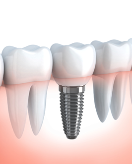 Dental Implants in Jaipur